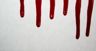 صورة ماذا يعني الدم في الحلم , تفسير رؤيه الدم فى المنام 1596 2 310x165