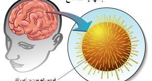 اعراض التهاب المخ والاعصاب , اعراض واسباب التهاب الدماغ