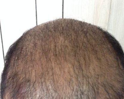 صور مراحل نمو الشعر المزروع , مفاهيم غلط ولازم تتصحح