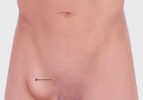 صورة علاج الفتق الاربي بالاعشاب , حافظ علي نفسك من التعرض للقتق