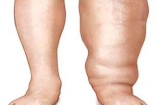صورة علاج داء الفيل , مرض يصب القدم فاحترس منه