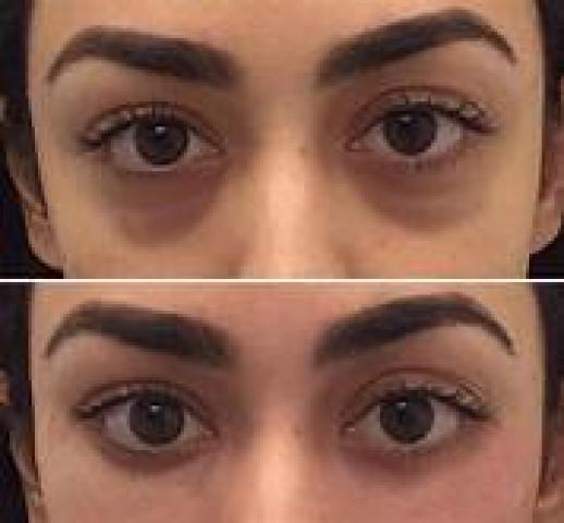صورة علاج الهالات السوداء تحت العين بسرعه , علاجات باثر فعال فى اقصر مده