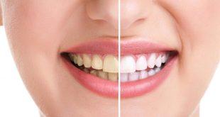 تبييض الاسنان بالكركم , استعيد بياض اسنانك فى اسبوع