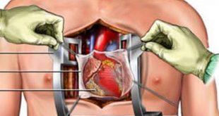صورة اخطر عمليات القلب , تفاصيل لا تعرفها عن اخطر عمليه يقوم بها الانسان
