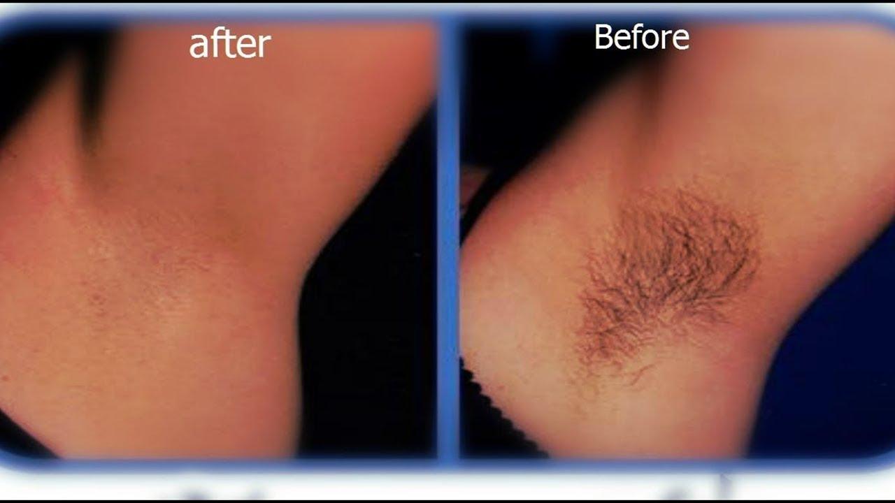 صورة الليزر لازالة الشعر في المناطق الحساسه , هل امنه ومضمونه دائما