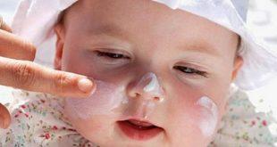 صورة تفتيح بشرة الاطفال من الشمس , اقضي علي دهون بشرة ابنك