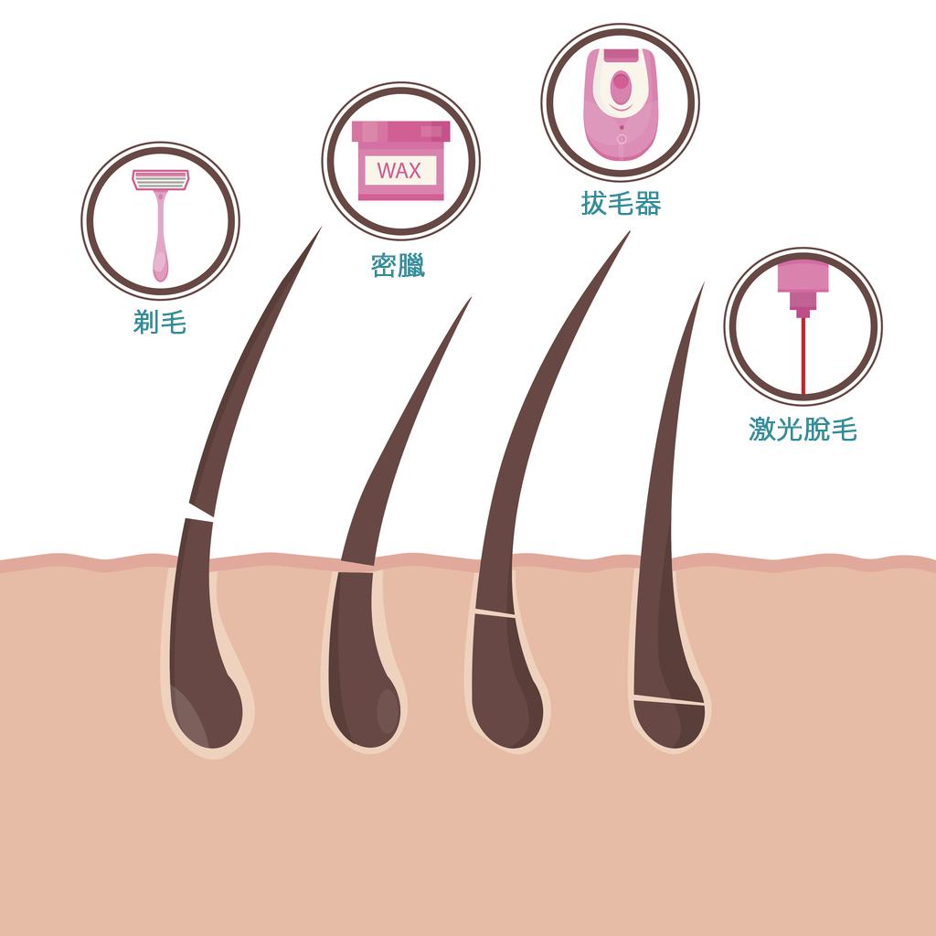 صورة ازالة شعر المناطق الحساسة بدون الم , طريقة ازالة الشعر بشكل مناسب