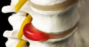 طرق علاج الديسك , دور الكمادات في علاج الديسك