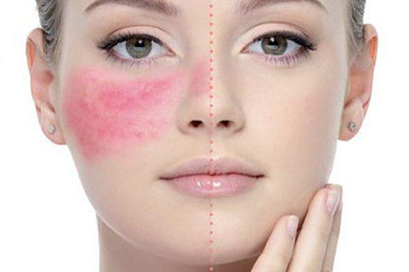صورة علاج تحسس الوجه , اعرفي سبب حساسية وجهك وعالجيها