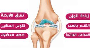 صورة اسباب الم الركبة اليمنى , اعرف سبب الم ركبتك وعلاجها