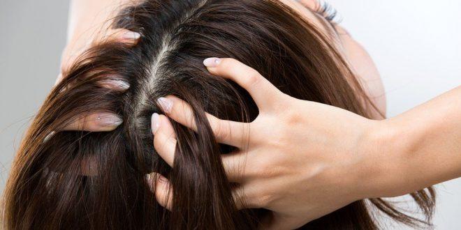 صورة تفسير حلم القمل في الشعر للحامل , اتخذى الحذر ولا تقلقى