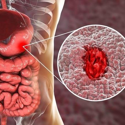 صورة اعراض ثقب المعدة , اسباب وعلاج قرحة المعدة