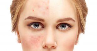 صورة وصفات طبيعية للتخلص من حبوب الوجه , للقضاء على حبوب الوجه نهائيا