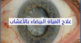 علاج المياه البيضاء في العين بالاعشاب