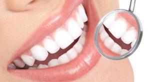 صورة اسباب ضعف الاسنان ، كيفيه معرفه اسباب ضعف الاسنان وتقويتها 406 3 310x165